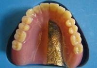 自費による義歯の種類