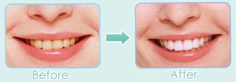 ホワイトニングは、削ったり色を塗ったりしないで歯を白くする方法です。
